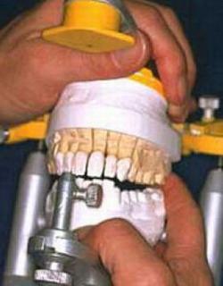 Стоматологический центр Ханерхоф - Германия - изготавление зубных протезов