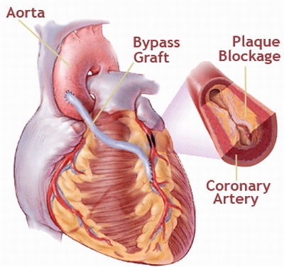 традиционная операция аортокоронарного шунтирования