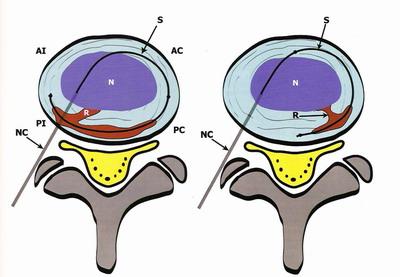 Под контролем рентгеноскопии провераяется правильное положение кончика катетера