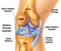 Протезирование женского коленного сустава