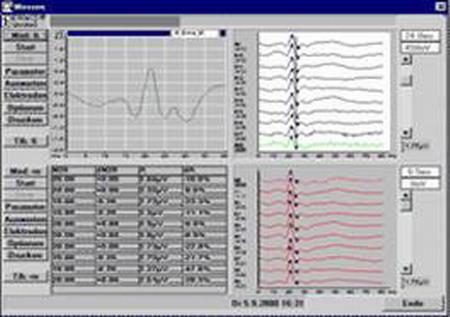 Интраоперационный мониторинг при проведении нейрохирургических вмешательств